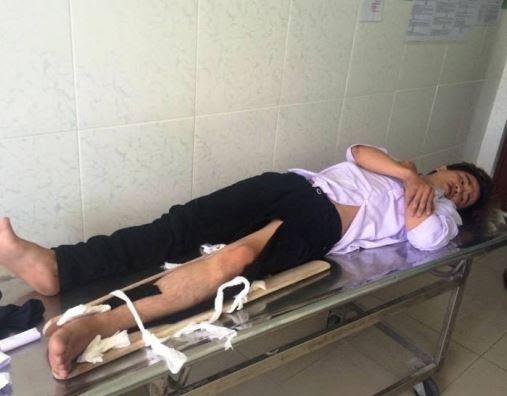 Đối tượng Bùi Thanh Ẩn đang điều trị tại bệnh viện.