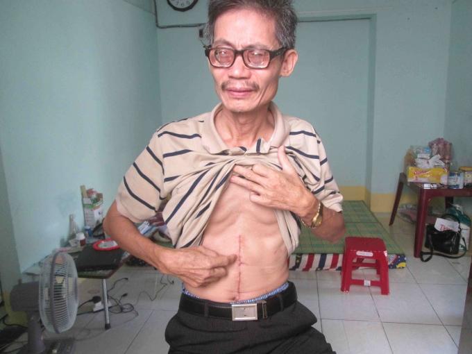 Ông Phạm Văn Sáu với vết thương do con trai gây ra.