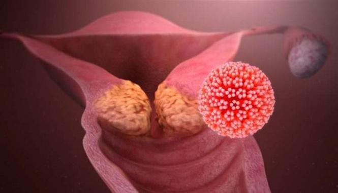 Khối u chứa tế bào ung thư khiến các hạt nano chuyển màu hồng