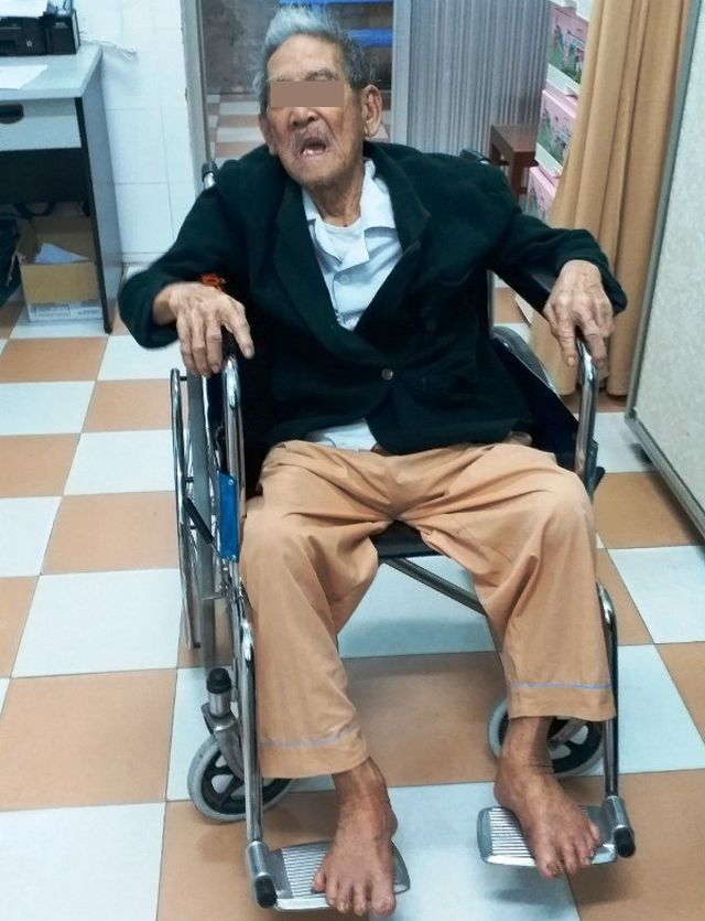 Sức khỏe ông V. đã khỏe sau khi được gắp xương trong thực quản và chuẩn bị xuất viện.