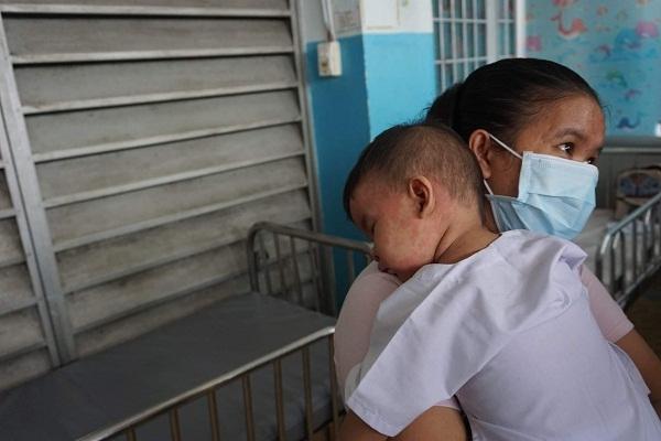 Một bé trai mắc bệnh sởi khá nặng được mẹ ôm vào lòng -Ảnh: PV