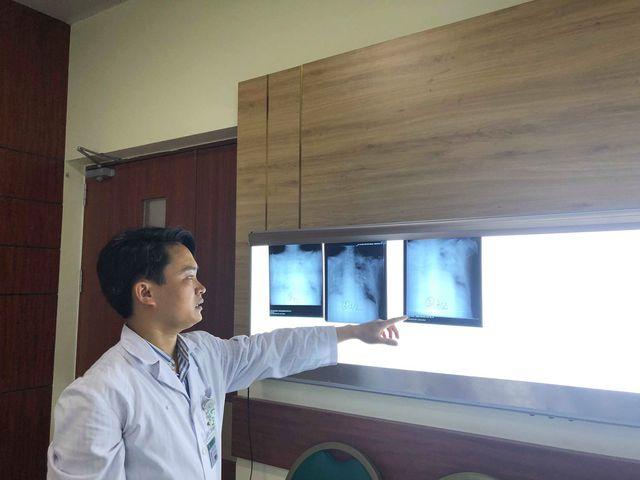 BS Thạch cho biết, phim chụp X-quang phổi cho thấy bệnh nhân viêm phổi rất trầm trọng. Ảnh: H.Hải