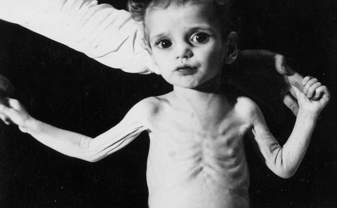 Đối với trẻ em, nhiễm một nồng độ chì thấp cũng có thể để lại di chứng trong suốt phần đời còn lại.