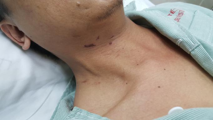 Một bên mắt, trên trán và phía dưới cổ có nhiều vết thương thâm tím.