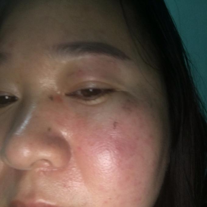 Khuôn mặt sưng tấy của chị Nhung sau khi bị ông Vũ hành hung.