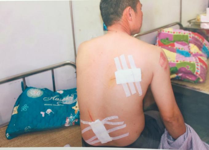 Những vết chém sau lưng của nạn nhân Dũng.
