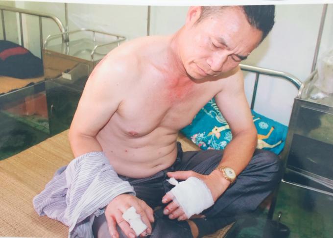 Ngón tay cũng bị nhiều vế thương do kiếm chém.