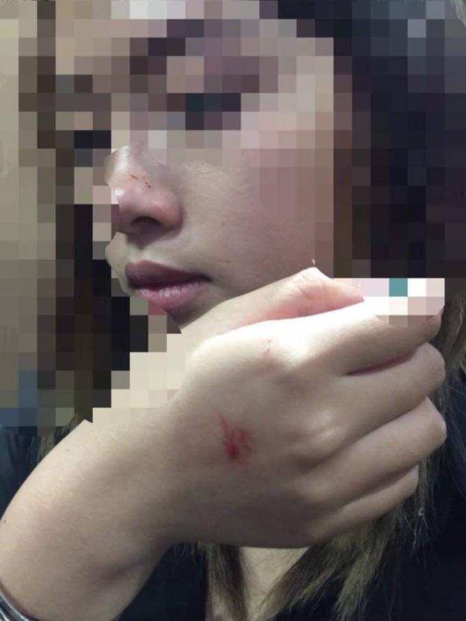 Hành vi tấn công của gã thanh niên đã để lại nhiều vết xước trên mặt và tay cô gái.