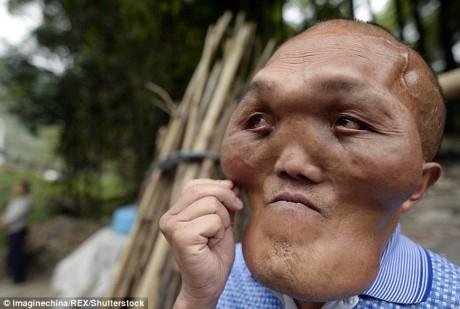 Người đàn ông có diện mạo như ngoài hành tinh