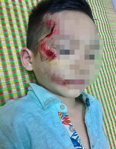 Cháu bé bị thương tích trên mặt (Nguồn Infornet).