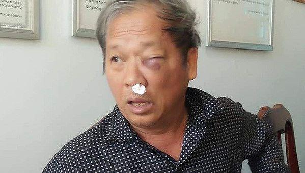 Nhà báo Hoàng Đình Chiểu bị hành hung dẫn tới nhiều thương tích.