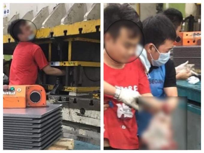 Công nhân bị tai nạn lao động xảy ra tại Công ty TNHH SeoJin Việt Nam.