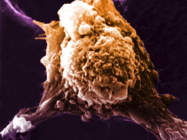 Các nhà khoa học đã có được bước tiến quan trọng trong việc tạo ra vắc xin phòng chống ung thư bằng cách giúp hệ miễn dịch của cơ thể tấn công các tế bào ung thư như thể chúng chính là 1 vi rút.