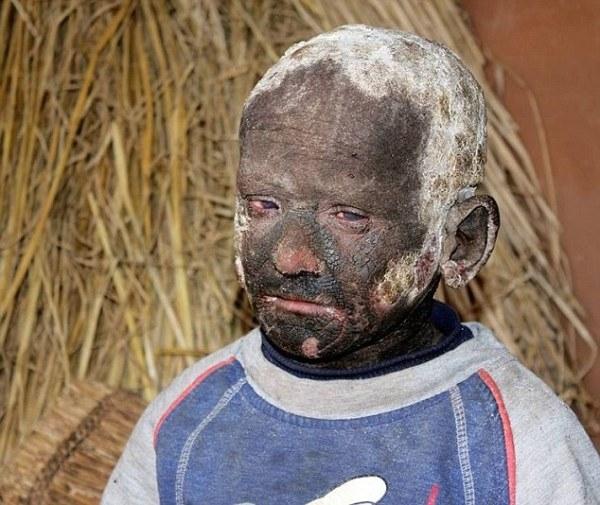 Cậu bé Ramesh Darji với làn da bị bao phủ bởi những mảng vảy dày cộp.
