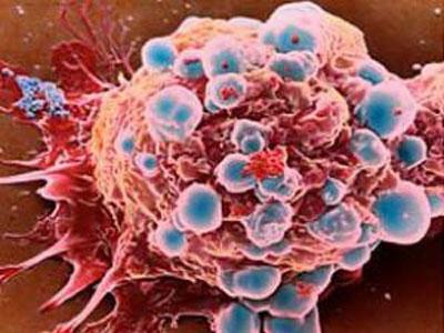 Khám phá bất ngờ: Tế bào ung thư cần mỡ để phát triển