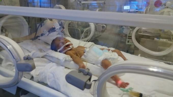 Hình ảnh bé Gấu được chăm sóc đặc biệt tại bệnh viện. Ảnh: Giao thông