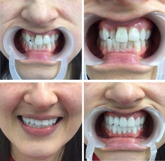 Bọc răng sứ: Để có hàm răng đẹp hoàn hảo, chúng ta phải bỏ ra bao nhiêu tiền?