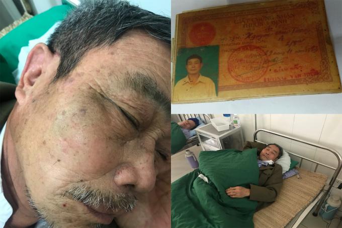 Thương tích trên mặt ông Thông (Thương binh chống Mỹ hạng 4/4) sau khi bị ông Đại hành hung và đã được điều trị tại BVĐK huyện Mê Linh.