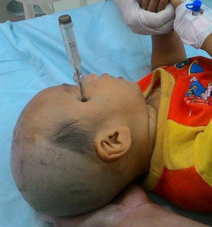 Bé Nguyễn Duy Khiêm bị tuốc nơ vít cắm vào đầu.