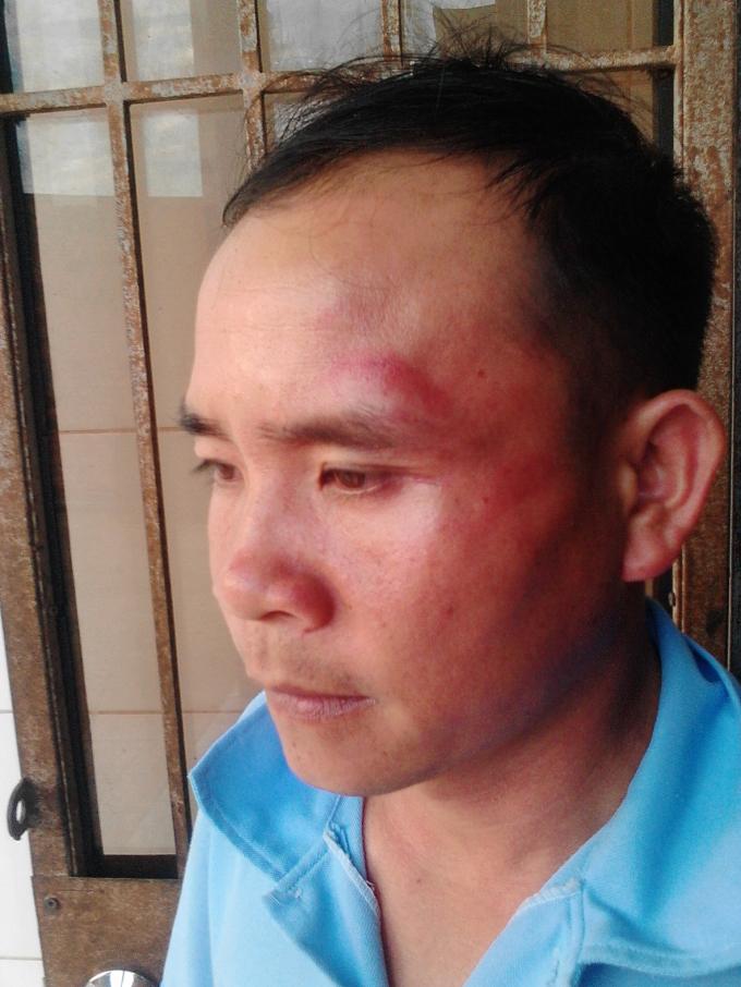 Nhiều kẻ lạ mặt đã dùng mũ bảo hiểm đánh mạnh vào mặt ông Tiến.