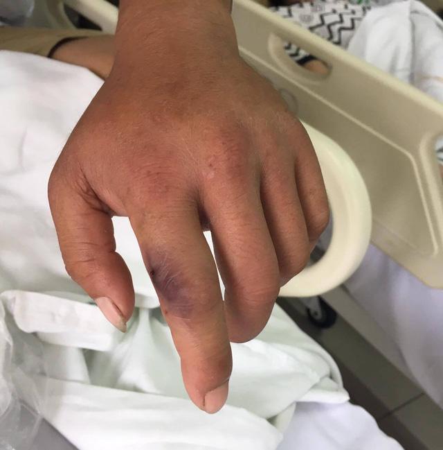 Bệnh nhân bị rắn cắn đang điều trị tại BV Bạch Mai. Ảnh: Đ.H.