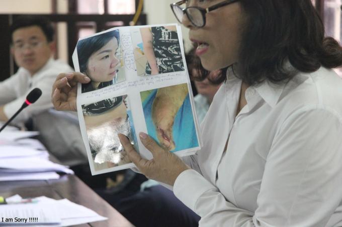Luật sư Nguyễn Thị Yến (Văn phòng luật sư Hoàng Hướng - Đoàn luật sư TP.Hà Nội) chỉ rõ vết thương của các bị cáo.