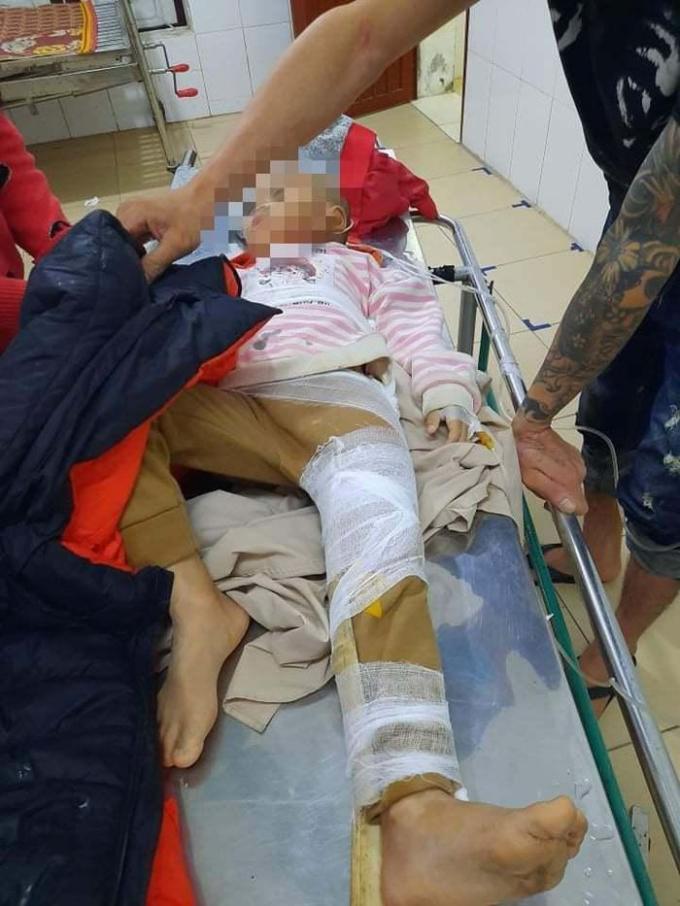 Cháu N.K.P (SN 2016) bị gãy xương đùi đang được cấp cứu tại bệnh viện.