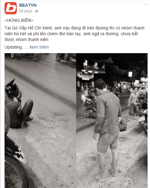Thông tin vụ việc một nam thanh niên bị chém đứt lìa bàn tay là xôn xao cộng đồng mạng. Nguồn: Facebook.