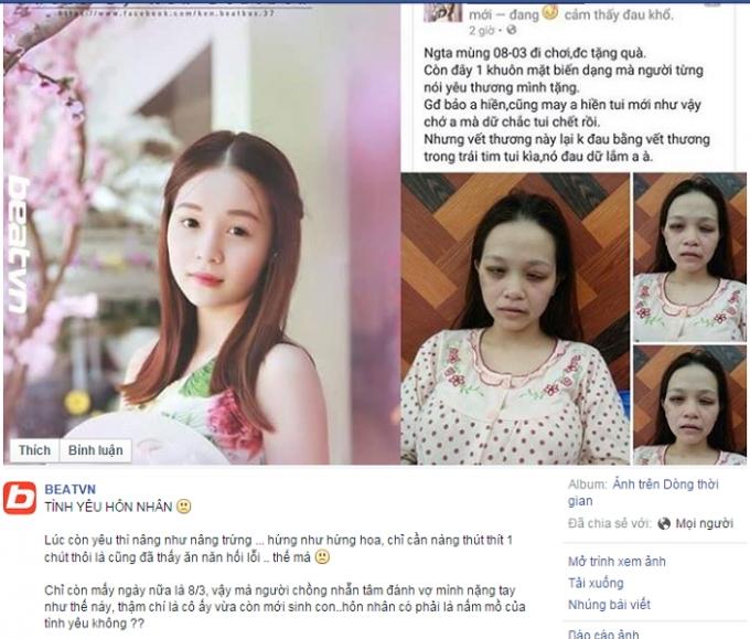 Tâm sự của người phụ nữ bị chồng đánh đến biến dạng khuôn mặt. Nguồn: Facebook.