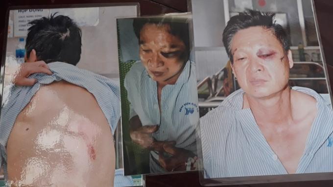 Ông Phương với nhiều thương tích trên người và được điều trị tại bệnh viện Kiến An, TP Hải Phòng. (Ảnh: Gia đình nạn nhân cung cấp)