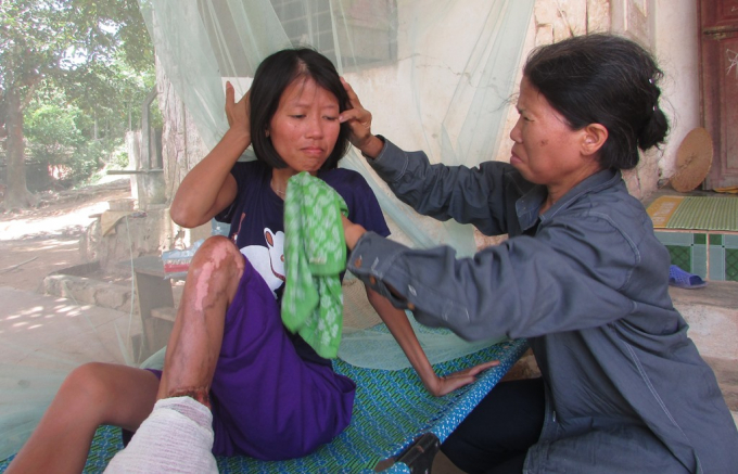 Hiện tại mọi sinh hoạt thường ngày của Thanh đều nhờ vào sự chăm sóc của người mẹ già.