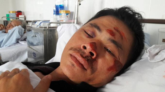 Khuôn mặt anh Hùng nhiều thương tích sau khi bị đánh đập.