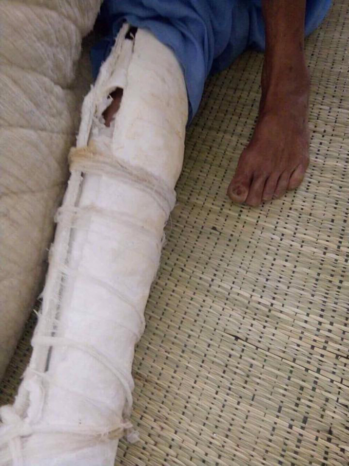 Một chân của ông N phải bó kín do bị con trai đánh.