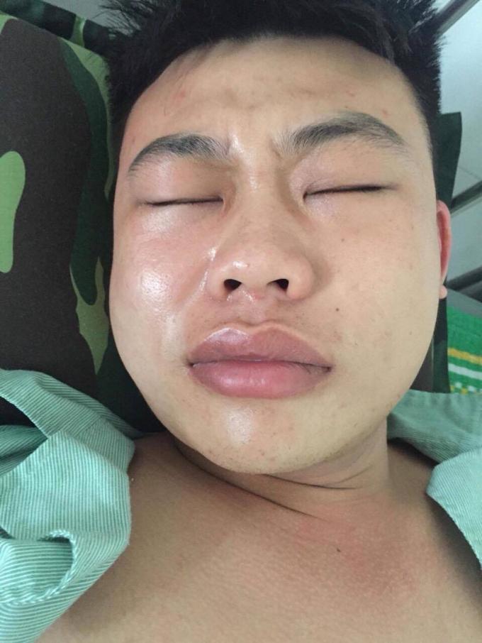Khuôn mặt anh Chung bị sưng sau khi được đưa về nhà.