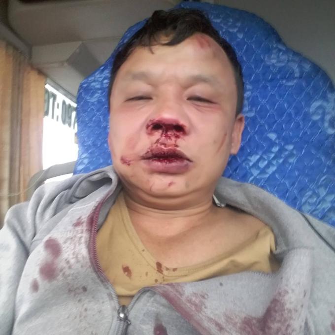 Anh Thiên bị nhóm thanh niên lạ đánh nhập viện trong tình trạng đa chấn thương.