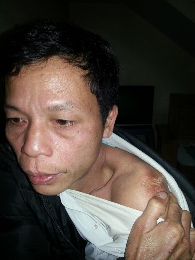 Vết sẹo trên vai được ông Hùng khẳng định là dấu vết của việc bị dùng nhục hình.