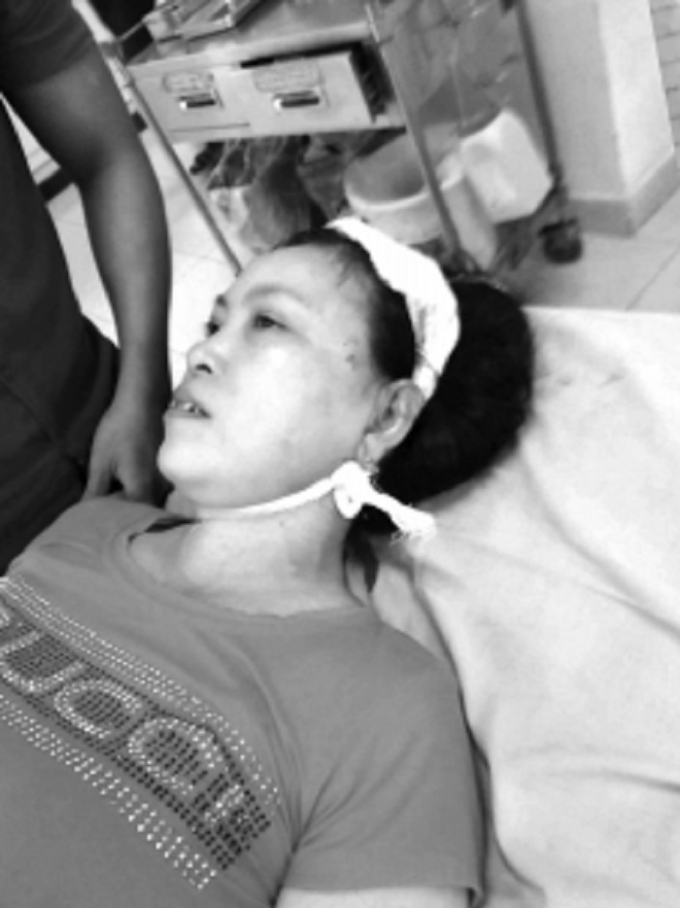 Bà Tượng tại bệnh viện và vết thương do con rể gây ra.