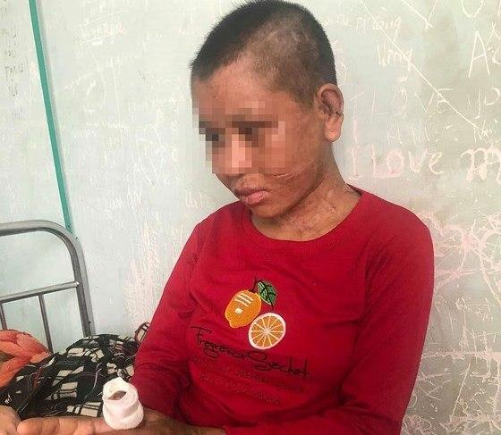 Chị Nhiêu đang được điều trị tại Trung tâm Y tế huyện Đak Glei.