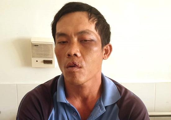 Anh Phương khi đang điều trị tại Bệnh viện Đa khoa tỉnh Phú Yên.