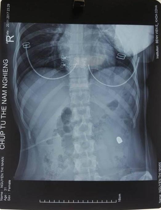 Kết quả chụp Xquang cho thấy có một đầu đạn trong ổ bụng bệnh nhân.
