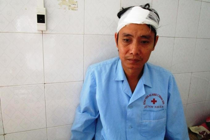 Anh Thiều Văn Hùng nạn nhân bị 2 thanh niên lạ mặt đánh.