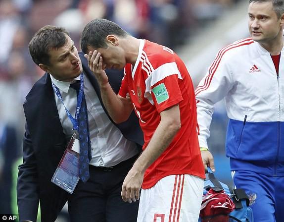 Alan Dzagoev gặp chấn thương sớm và phải rời sân