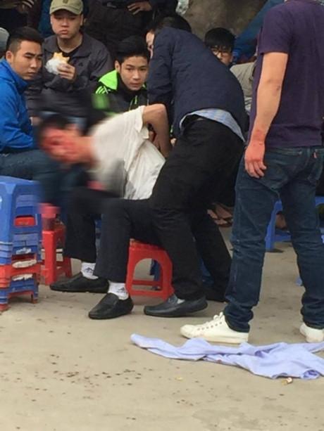 Anh Nh. (áo trắng) bị hành hung. (Ảnh do nạn nhân cung cấp).
