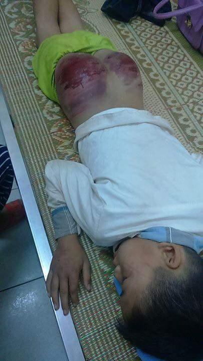 Phần mông của L. bị đánh tới mức phồng rộp, rớm máu.