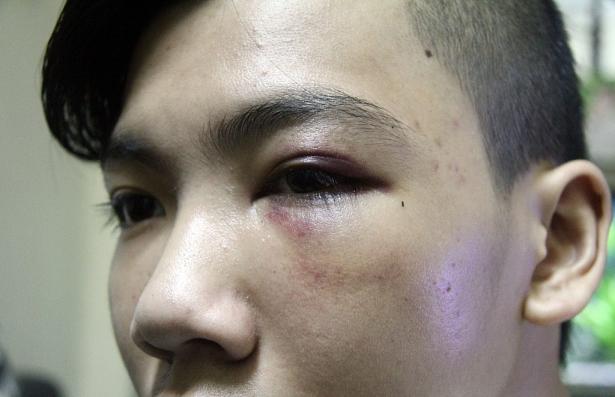 Các bác sĩ chẩn đoán Phong bị tụ máu mắt trái, rạn xương gò má trái sau trận