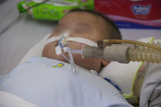 Nhiều ca lúc nhập viện, trẻ phải thở máy, lọc máu