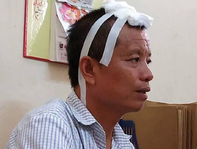 Đối tượng Nguyễn Xuân Tiến tại cơ quan điều tra.