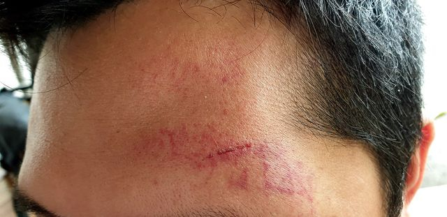 Vết thương trên phần đầu anh T. do nhóm người lạ mặt gây ra.