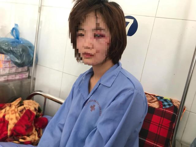 Chị H. với những thương tích trên khuôn mặt sau khi bị nhóm đối tượng nam giới hành hung (Ảnh: CTV).