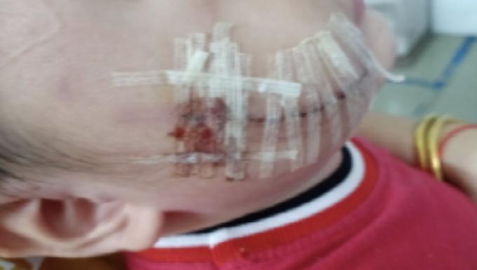 Bé 2 tuổi bị chó cắn rách mặt, được cấp cứu tại BV Nhi đồng 1 (Ảnh: BVCC)